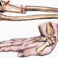 Viimasel ajal on meedias olnud palju informatsiooni osteoporoosist ehk luude hõrenemise haigusest. 20. oktoobrit tähistati koguni kui rahvusvahelise osteoporoosi päeva.