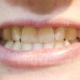 Raske aeg ning tööpuudus paneb inimesi üha vähem mõtlema oma hammaste ravimise peale ning mitmed hambaarstid kinnitasid Oma Saarele, et järjekorrad nende uste taga on läinud palju lühemaks kui aastaid tagasi.