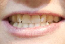Masu on hambaravisabad kõvasti lühemaks närinud