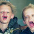 """Harvaesinev haigus muutis vennad Cullenid populaarse raamatu- ja filmisaaga """"Videvik"""" (ingl k Twilight) tegelaste sarnaseks: poistel on teravad hambad ja nad on tundlikud otsese päikesevalguse suhtes."""