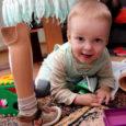 Saaremaa väikemees Oskar on Eestis teadaolevalt ainus, maailmas tervikuna aga viies-kuues laps, kelle sünnihetkel on nii meedikute kui ka vanemate suureks kohkumuseks tuvastatud FATCO sündroom ehk jäsemete kaasasündinud väärareng.