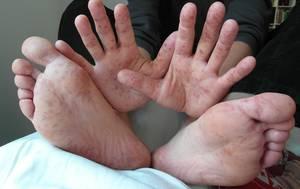Eestisse on jõudnud ülinakkav Coxsackie viirus, mille sümptomiteks on valu, kõrge palavik ja lööve. Mida teha, et ennast ja oma lähedasi viirusest säästa või haigestumise korral vaevusi leevendada? Nõu annab […]